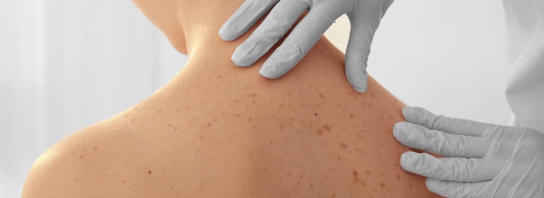 Visita Dermatologica, Dermatologo | KOALA: Ambulatorio Polispecialistico Riabilitativo, Treviglio Bergamo
