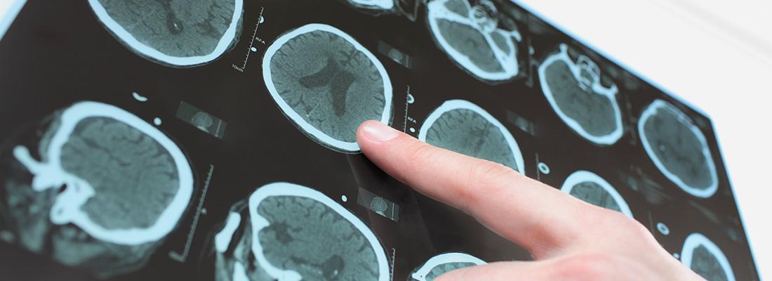 Visita Neurochirurgica, Neurochirurgo | KOALA: Ambulatorio Polispecialistico Riabilitativo, Treviglio Bergamo